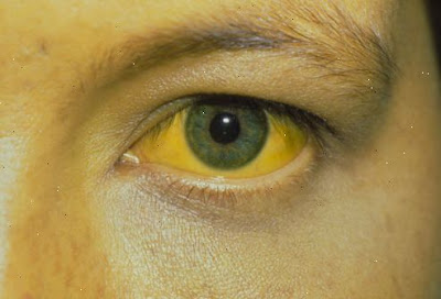 is the symptom that the patient sees yellow Jaundice Definition - What Is Jaundice