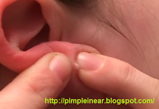 Pimple In Ear
