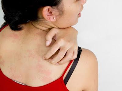 Tratamientos Homeopáticos Para Psoriasis