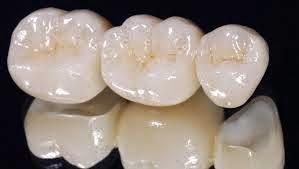 Servicios de un dentista