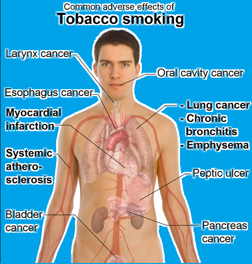 Smoking the bad habit