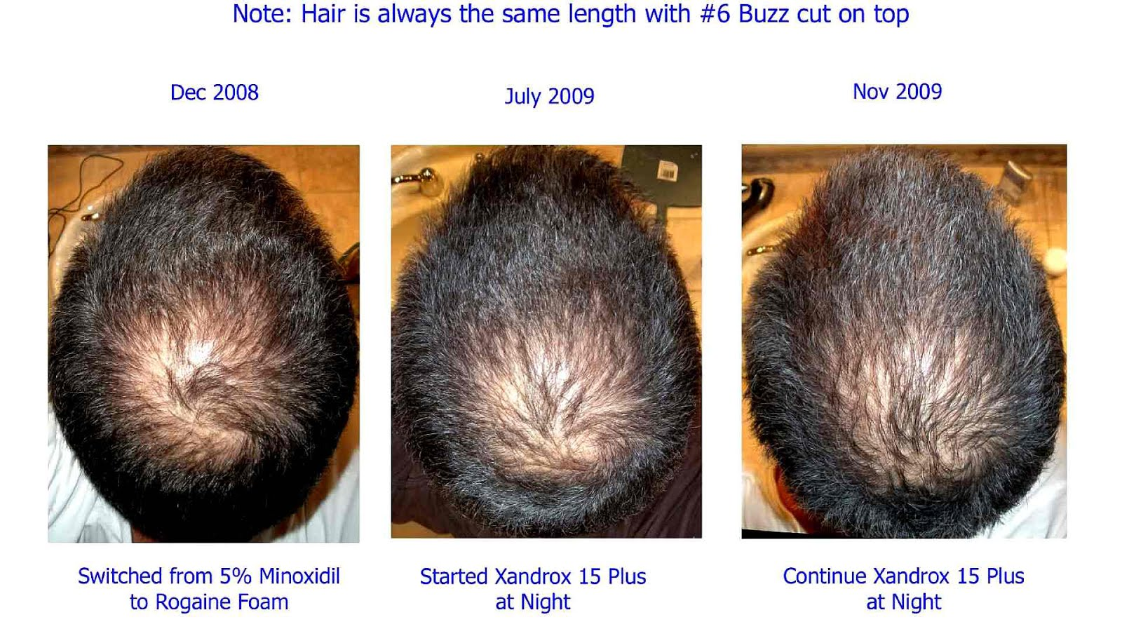 Minoxidil Side Effects Rogaine Effect Choices