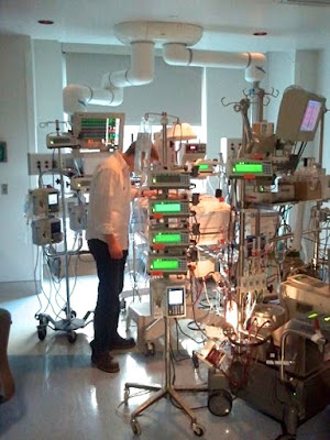 The ECMO machinery