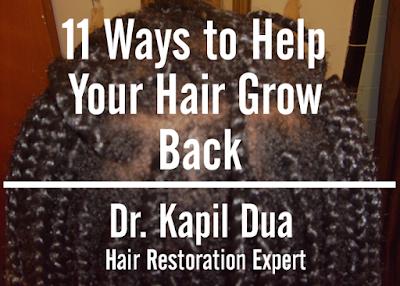 11 Ways to Help Your Hair Grow Back | Dr. Kapil Dua Hair Restoration Expert
