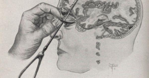 metode pengobatan lobotomi yaitu menusukan besi kedalam mata
