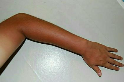 Tangan belang akibat sinar matahari? Ini cara kembali memutihkannya