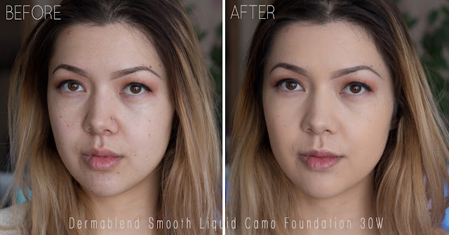 Dermablend Smooth Liquid Camo Foundation bisque 30w before and after