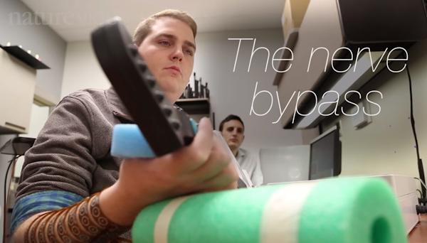 大腦植入晶片,意念控制癱瘓肢體成真
