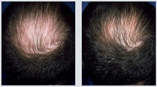Fotos comparando antes e depois de tratamento de calvície com minoxidil