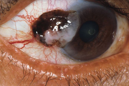 Cancer of the Eye, Rare but could be Life Threatening