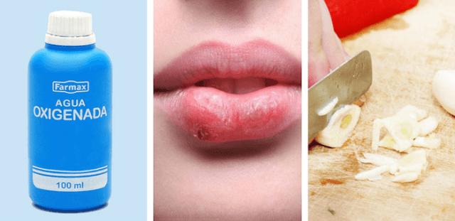 remedios para eliminar el herpes labial