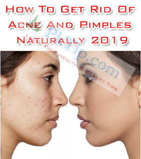 How To Get Rid Of Acne And Pimples Naturally 2019