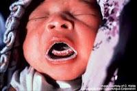 infeccion-por-hongos-en-niños