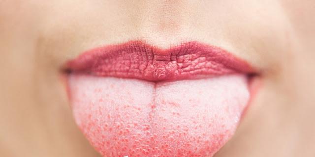 Tahukah Anda, Perubahan Warna Lidah Bisa Mengindikasikan Suatu Penyakit!