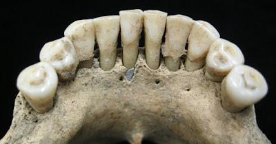 Τι γύρευε λίγο lapis lazuli στα δόντια μιας μοναχής του Μεσαίωνα;