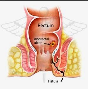 Pengertian penyakit Fistula Ani, Gejala, Penyebab dan Pengobatan