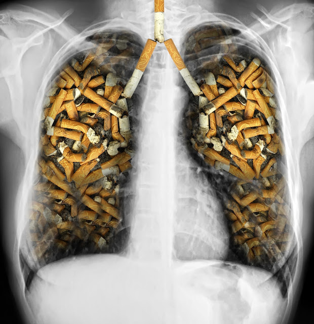 https://www.researchgate.net/publication/299775809_From_smoking_to_COPD_-_current_approaches
