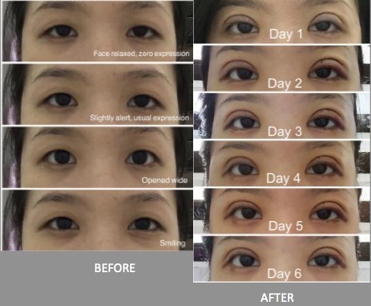 Double eyelid surgery Singapore