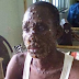 7 recover from monkey pox in Bayelsa