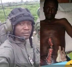 Nigerian Soldier In Critical Condition After Wrong Surgery