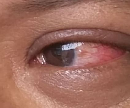 Conjunctivitis, Pink Eye, Virus or Bacteria, Eye Infection