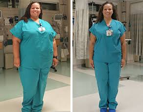 The Health Benefits of Gastric Sleeve Surgery