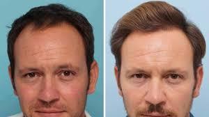 saç ekimi öncesi ve sonrası foto 16