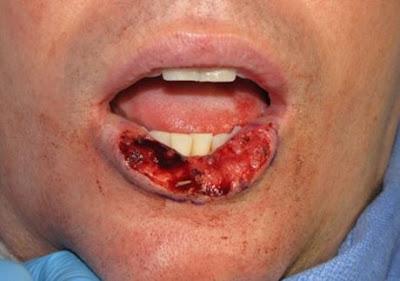 Obat alami untuk mengatasi kanker mulut