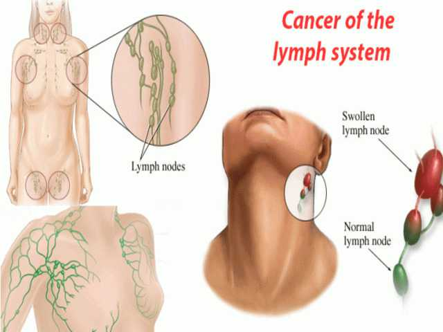 symptoms of neck cancer in lymph node