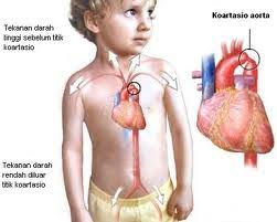 Cara Mengobati Jantung Bocor Tanpa Operasi