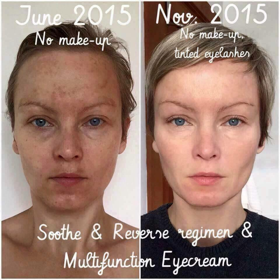 Healthy Fit And Focused Sun Damage Brown Spots Uneven Skin
