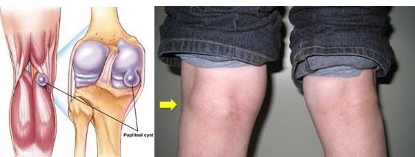 Cara Menyembuhkan Benjolan Di Belakang Lutut