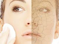 Cara Mengatasi Kulit Wajah Yang Kering Dan Mengelupas