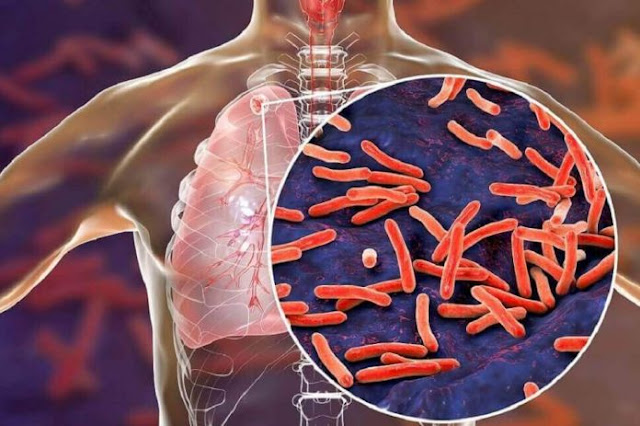 Penyebab Penyakit TBC, Gejala, Dan Pengobatannya