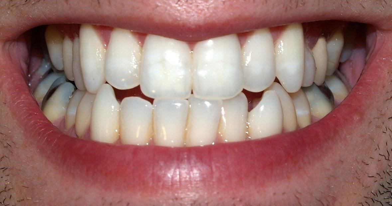 تفسير حلم رؤية تسوس الاسنان في المنام لابن سيرين