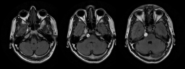 Neuroradiology Cases  ...