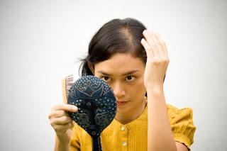 Minoxidil yang Ampuh dan Aman Untuk Rambut Wanita