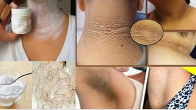 Milagroso remedio casero que quita las manchas del cuello, las axilas y los codos de forma natural.