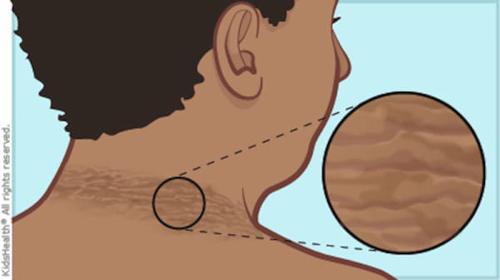 Αν έχετε ΑΥΤΟ το Σημάδι στο Λαιμό σας ΠΑΤΕ ΓΡΗΓΟΡΑ ΣΤΟ ΓΙΑΤΡΟ - Δεν είναι αστεία αυτά (ΦΩΤΟ & ΒΙΝΤΕΟ)