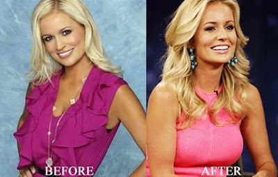 Emily Maynard Plastic Surgery Nosejob, Breast Implants, Botox Injections Before and After Photos