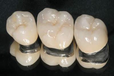 giá răng sứ rẻ nhất là bao nhiêu -3