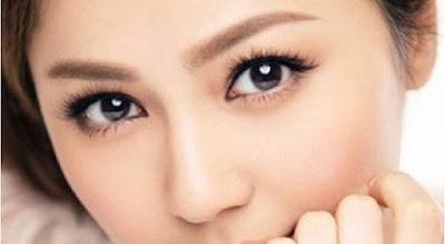 Kết quả sau phẫu thuật cắt mí mắt tồn tại lâu không? 1