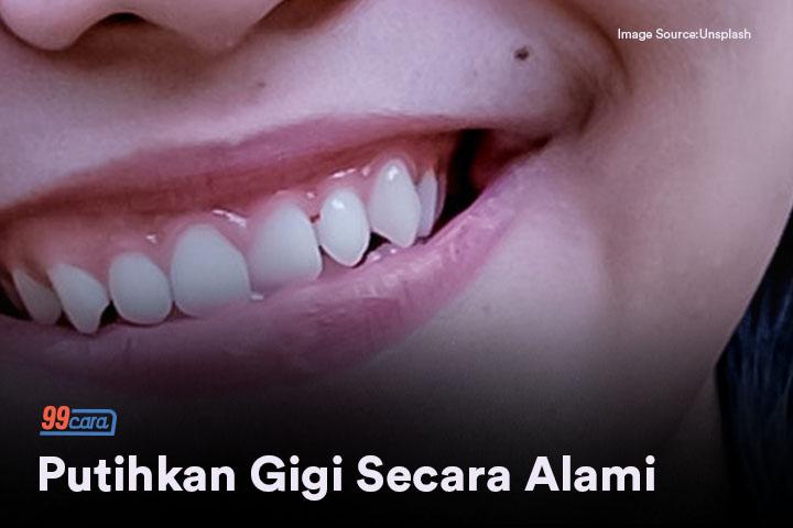 Ini Dia Cara Memutihkan Gigi Secara Alami Cara Unik Cara Untuk