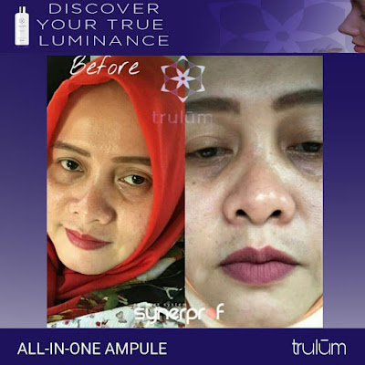 Jual Obat Penghilang Kantung Mata Trulum Skincare Kutai Barat Kalimantan Timur