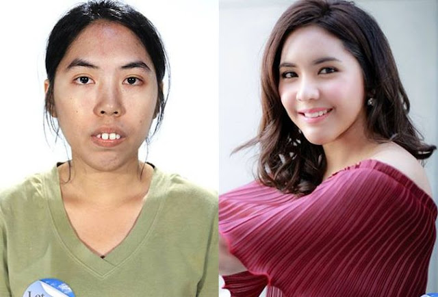 Hasil Operasi Plastik Sempurna Cewek Thailand