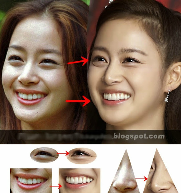 Park Min Young Before And After Surgery Imgurl