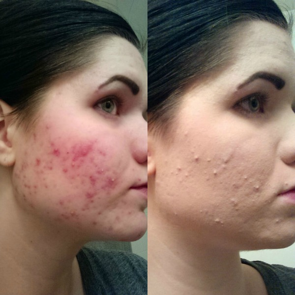 Woman searches for a permanent solution for pimples