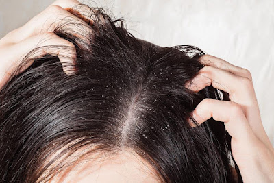 Scalp Exfoliate and Revitalize Therapy by Kaya Skin Clinic