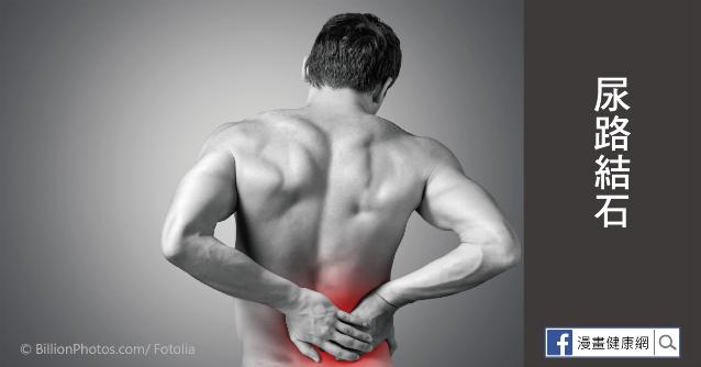 尿路結石的症狀與治療