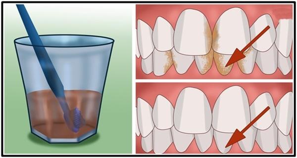 Dahsyat !!! Inilah Cara Menghilangkan Plak Atau Karang Gigi, Serta Memutihkannya Secara Alami Dan Cepat !